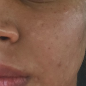 Redermilization Hyaluronic Acid Injections